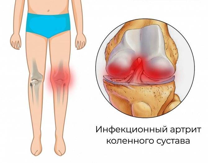 Артрит коленного сустава у детей: причины, симптомы, лечение и возрастные особенности