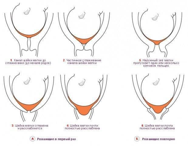 Что происходит с шейкой матки при беременности на ранних сроках? положение, состояние, раскрытие шейки
