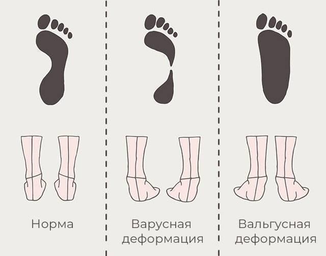 Вальгусная и варусная деформация стопы у детей фото