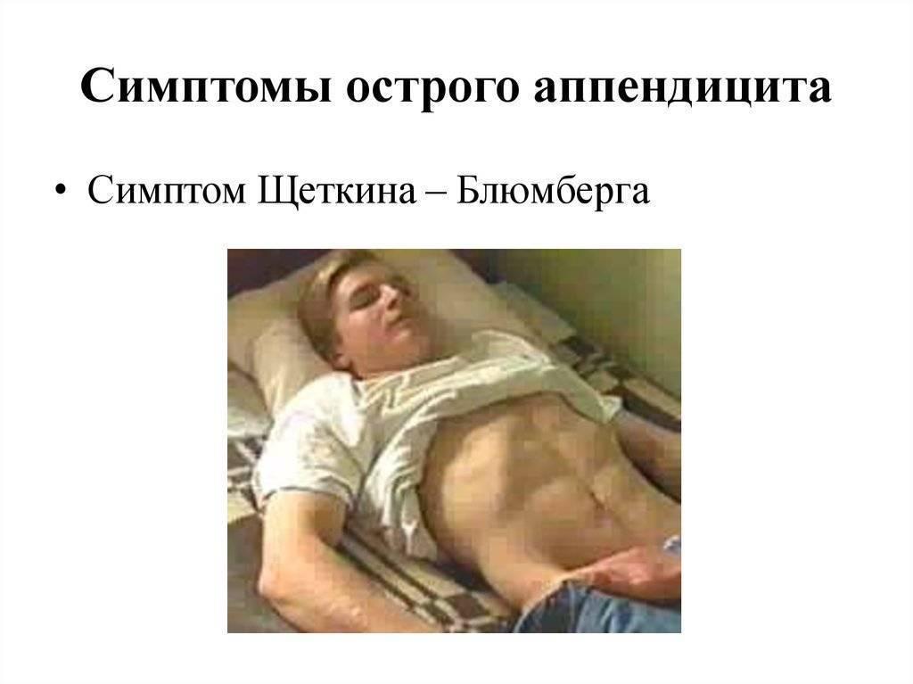 Пять советов, как вовремя распознать аппендицит  — российская газета