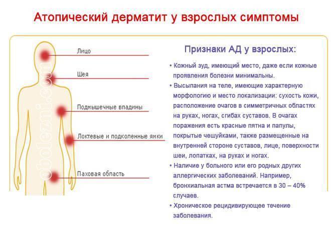 Дерматит кожи: 32 фото с описанием, причины и симптомы, лечение и помощь