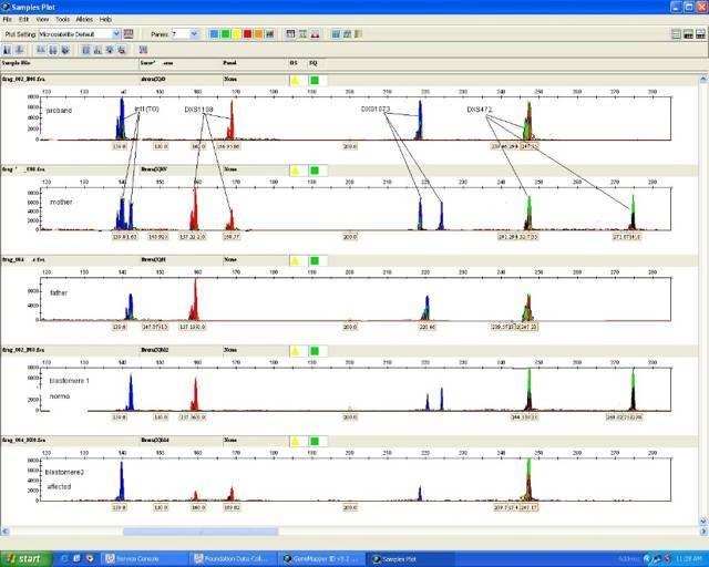 Преимплантационная генетическая диагностика (пгд) при эко что это такое? pgn диагностика.