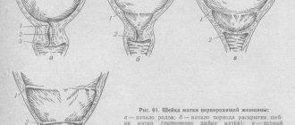 Состояние шейки матки перед месячными, менструацией, какая на ощупь, состояние