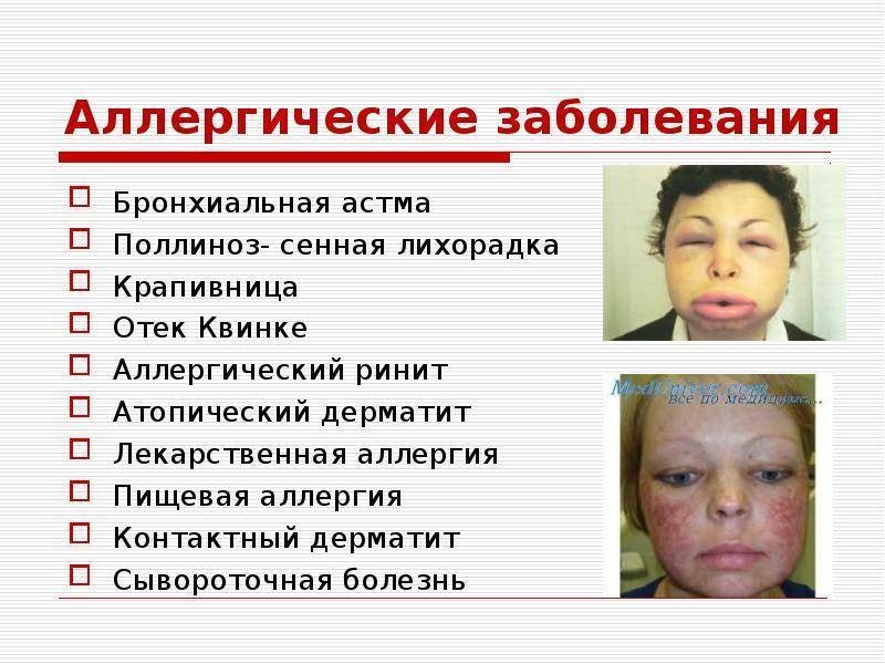 Аллергия на глазах у ребенка: аллергический конъюктивит