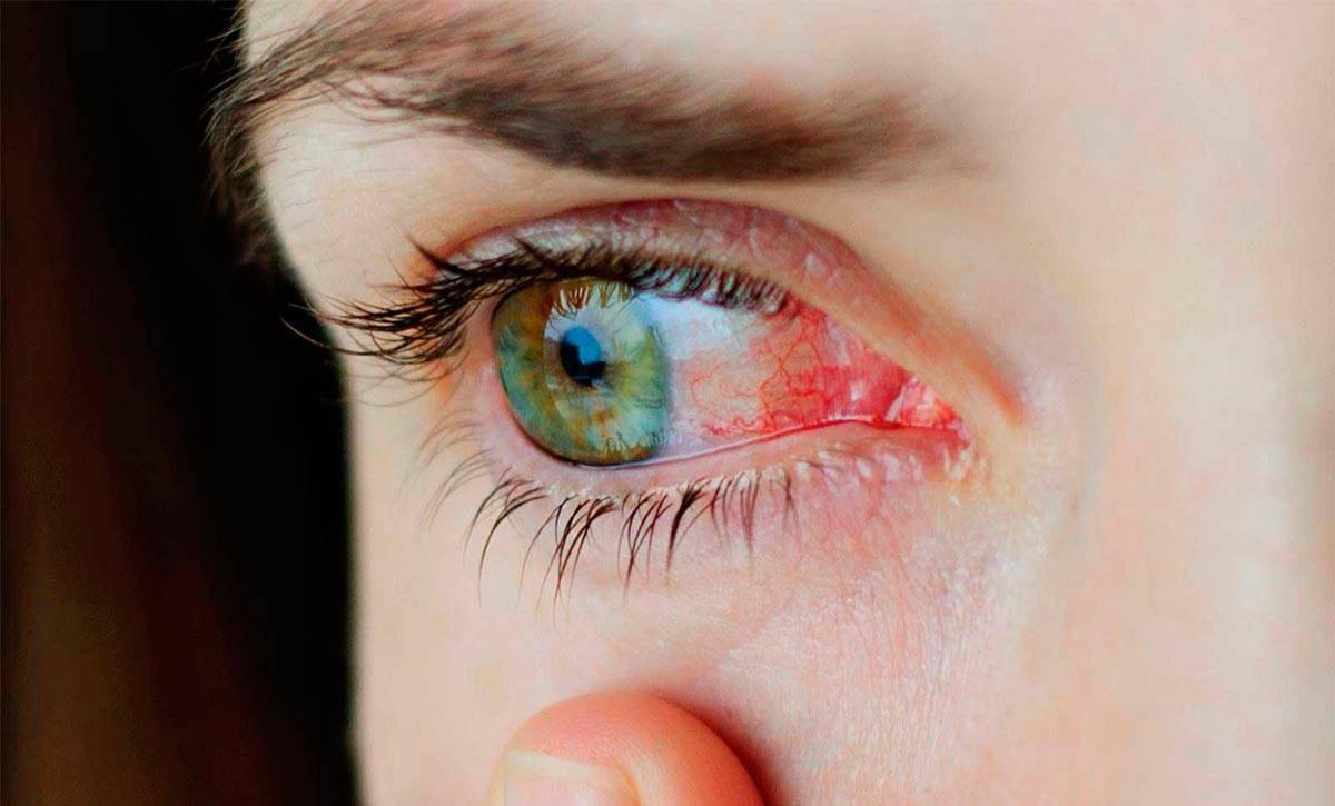 Вирусный конъюнктивит у детей - причины, симптомы и лечение