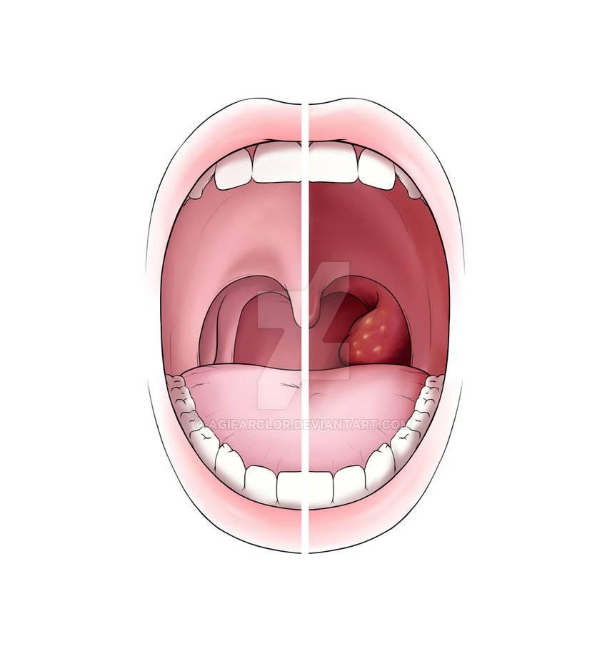 Как выглядит здоровое горло у ребенка и красное горло - врачарешение