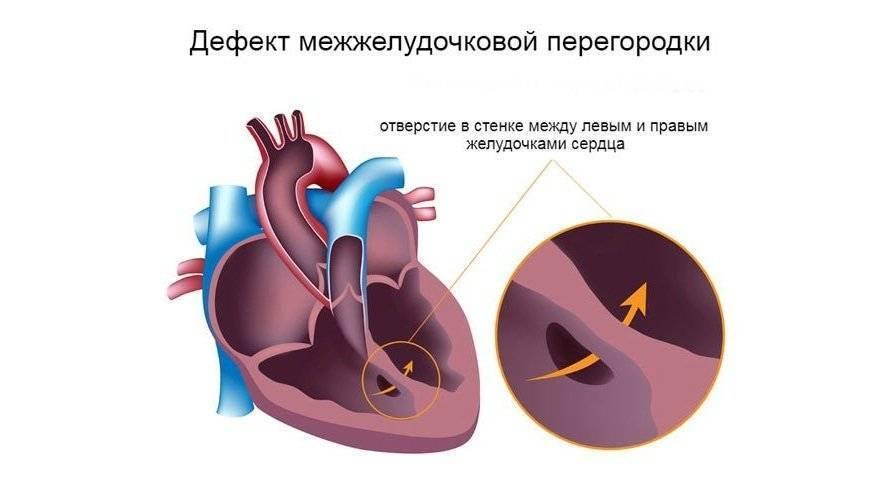 Дефект межжелудочковой перегородки у новорожденного - подробная информация