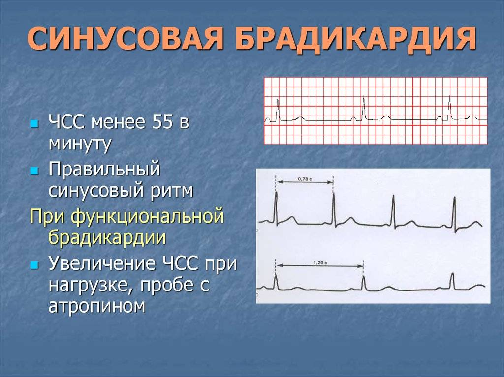 Если сердце малыша замедлилось: опасна ли брадикардия у детей?
