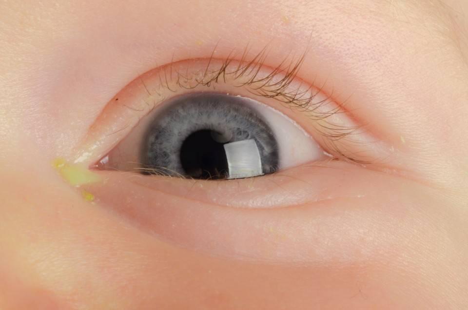 Гноится глаз у новорожденных: причины, лечение, фото