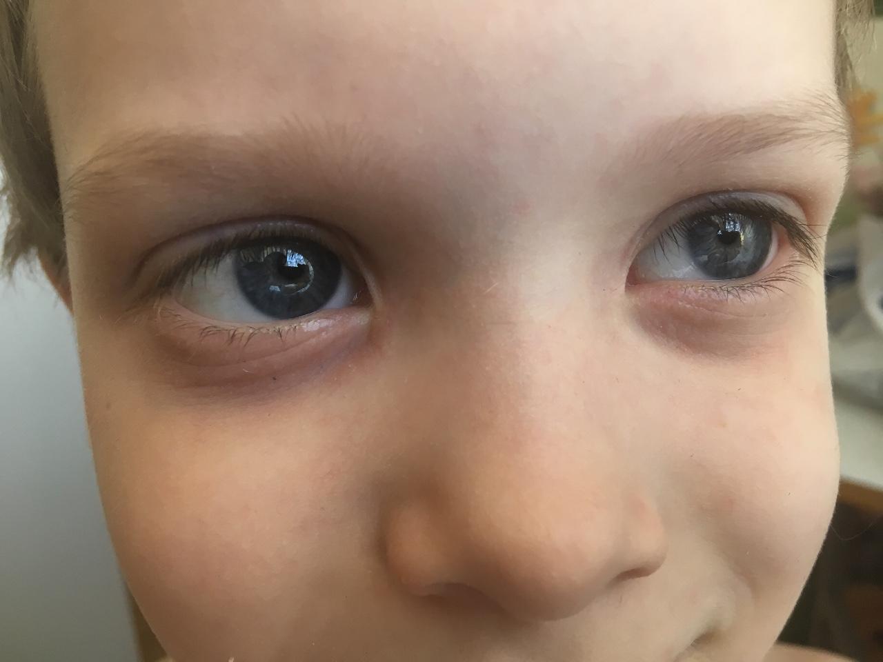 Синяки под глазами у ребенка, причины: почему и от чего у детей появилась синева в 1-3 года? | симптомы | vpolozhenii.com
