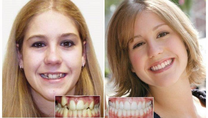 С какого возраста и до скольки лет можно ставить брекеты для выравнивания зубов