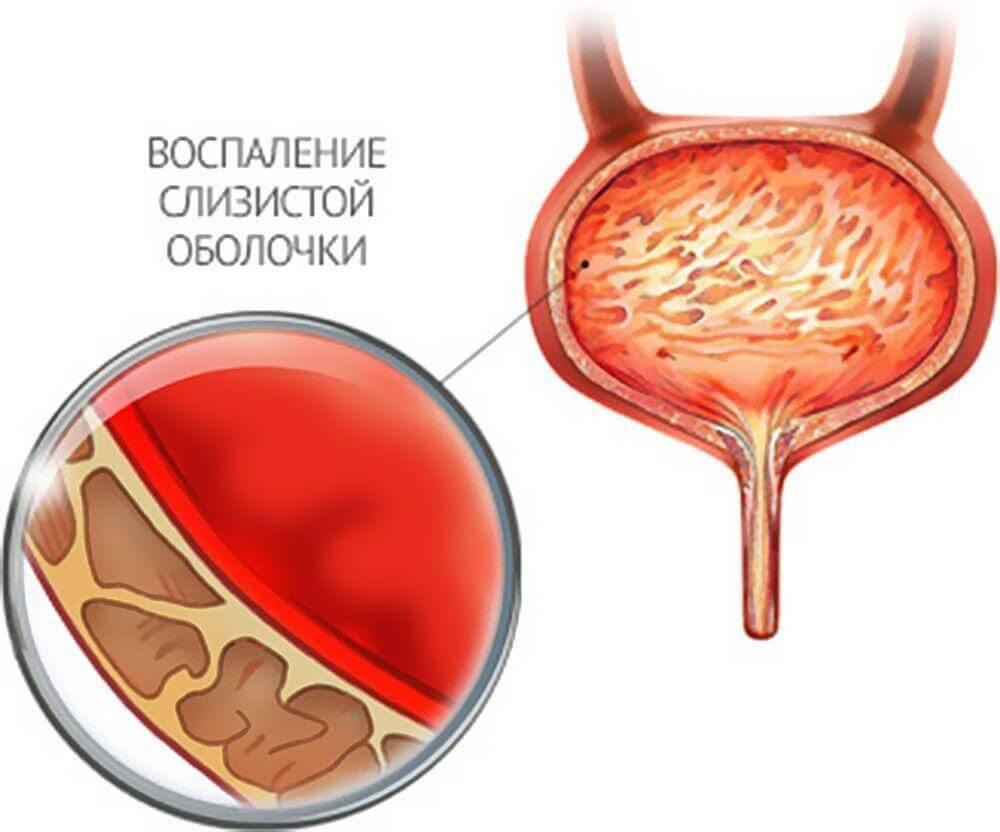 Особенности лечения цистита у мальчиков, какие препараты лучше | prof-medstail.ru