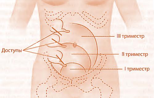 В чрезвычайном положении. аппендицит во время беременности