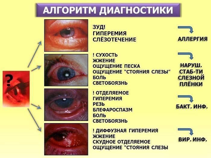Глаз покраснел и гноится чем лечить - все о простуде и лор-заболеваниях