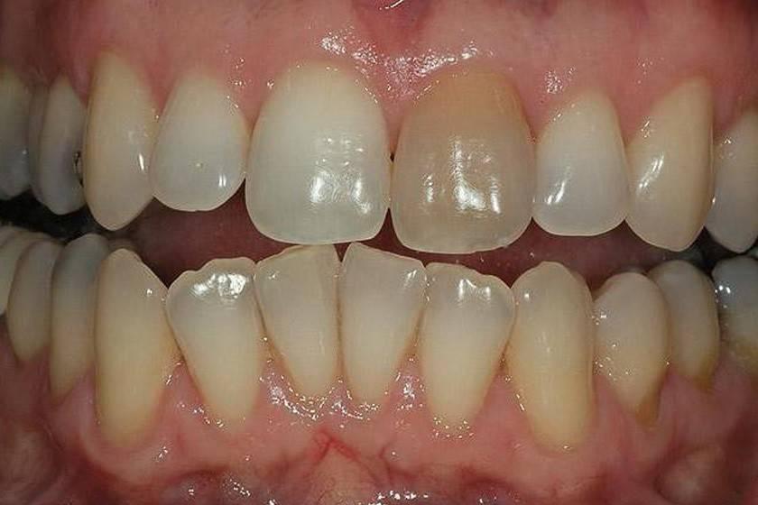Причины темного налета на зубах у детей лечение