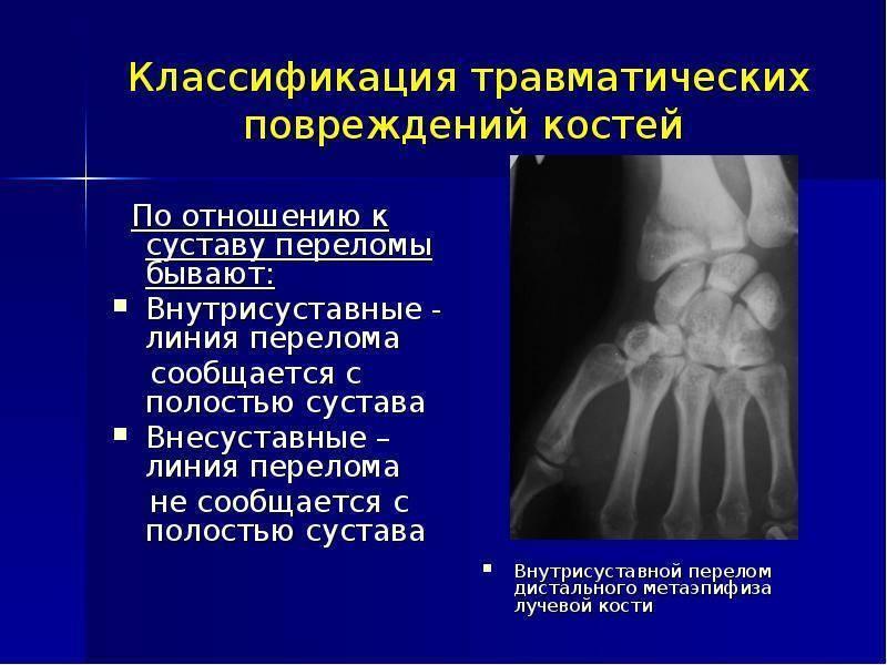 Перелом руки у ребенка: как лечить травмы у детей   wmj.ru