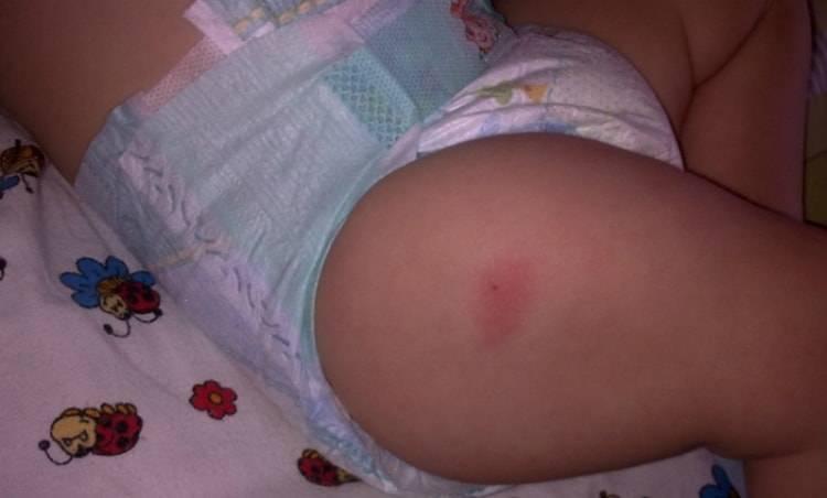 Акдс последствия у детей после прививки