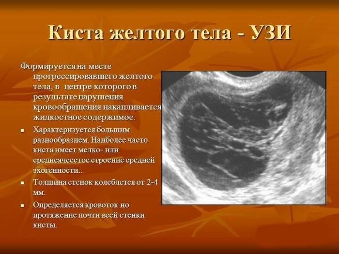 Киста желтого тела: особенности, причины, симптомы, диагностика, лечение
