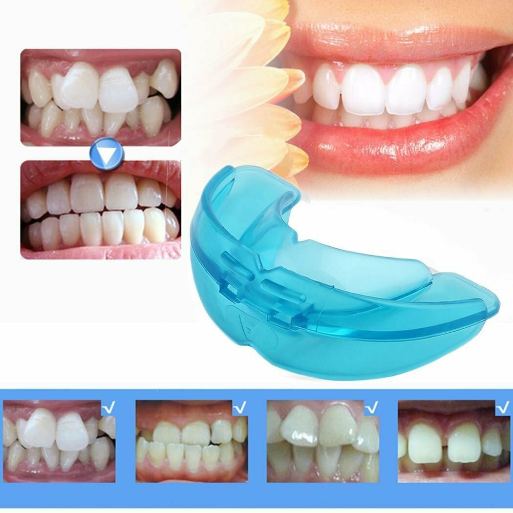 Пластины для выравнивания зубов, мнение специалиста