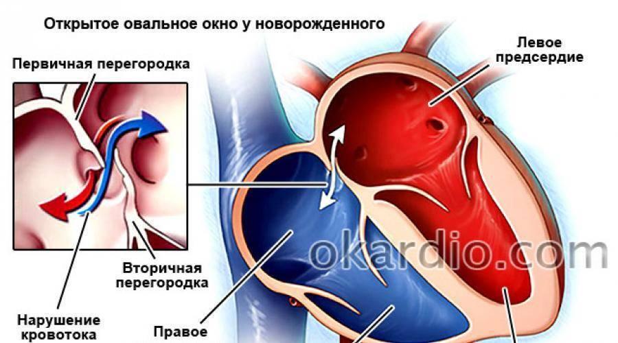 Врожденный порок сердца дефект межпредсердной перегородки