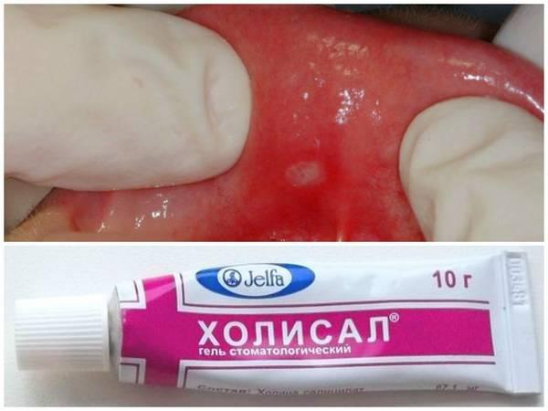 У ребенка во рту белые язвочки — зубы