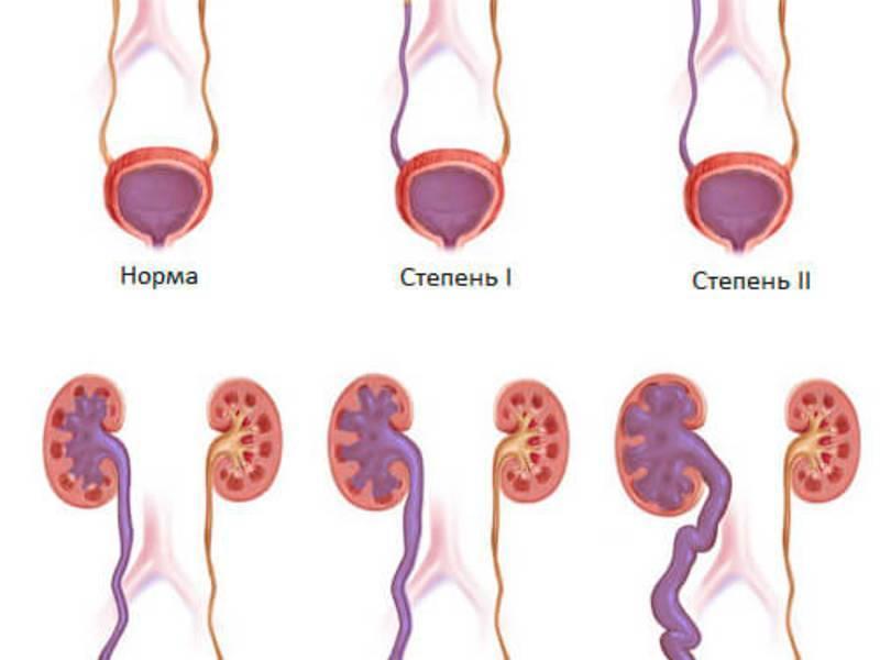 Лечение фимоза (сужения крайней плоти полового члена) в израиле
