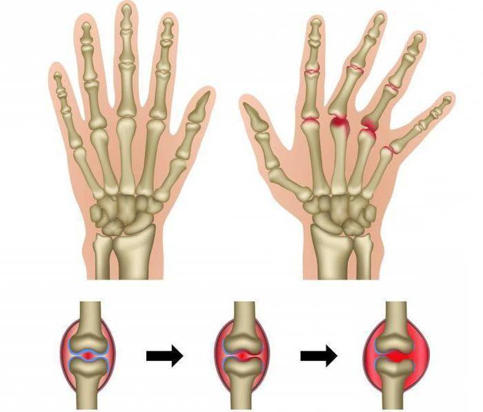 Ревматоидный артрит у детей - клиническая картина заболевания