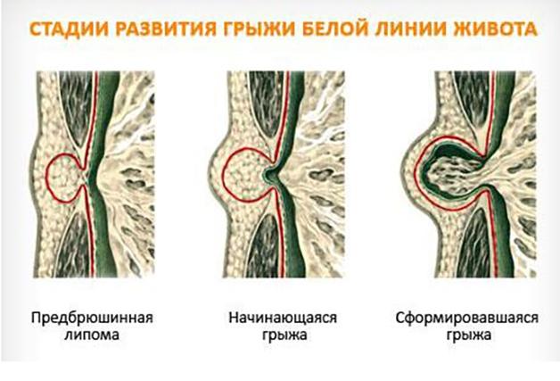Как лечить грыжу белой линии живота у детей. грыжа у новорожденных и грудничков грыжа белой линии живота у младенцев - заболевания-мед