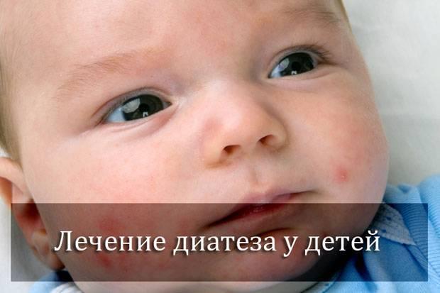 Лечение диатеза у грудничков в домашних условиях, как лечить у грудного ребенка
