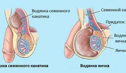 Гидроцеле или водянка яичка у мальчиков (у плода, новорожденного, грудничка, младенца, подростка): причины, лечение, операция, последствия, фото