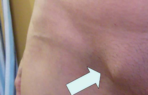 Увеличены лимфоузлы у ребенка в паху: причины