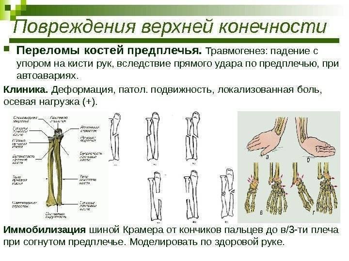 Перелом руки у ребенка: особенности и методы лечения