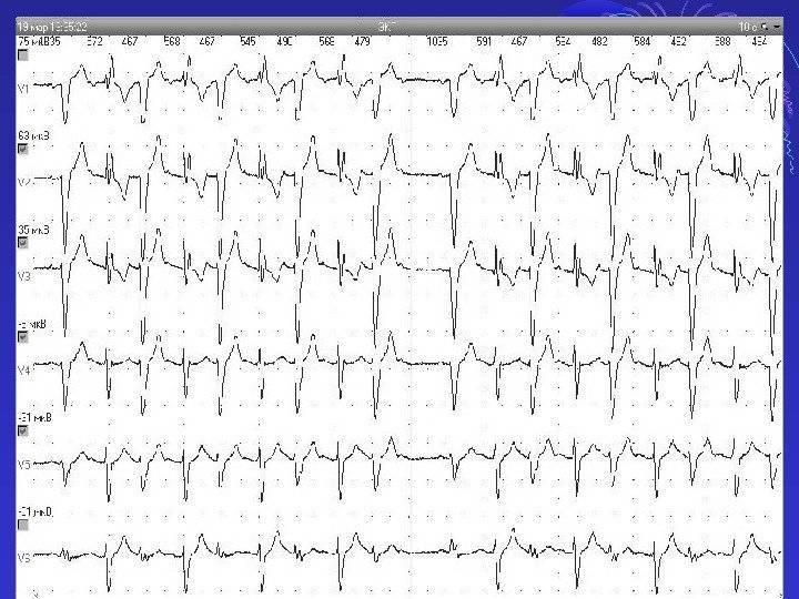 Нарушения внутрижелудочковой проводимости: понятие, причины, формы, диагностика, когда нужно лечить