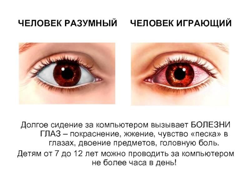 Болят глаза: возможные причины и лечение