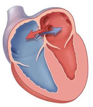 Характеристика и симптоматика открытого овального окна в сердце у ребенка