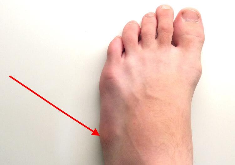 Гигрома у ребенка (13 фото): лечение на ноге и руке, стопе и коленном суставе, запястье или подколенной ямке