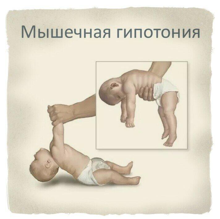 Повышенный тонус у младенца - всё о грудничках