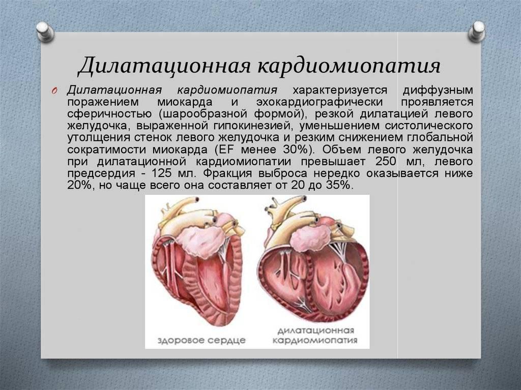 Кардиомиопатия у подростков — медико-диагностический центр starlab