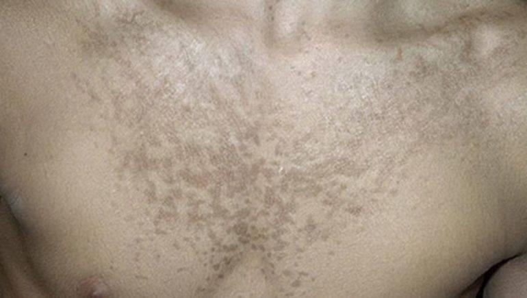 Лишай у детей: симптомы по типам, как выглядит сыпь + схемы лечения | здорова и красива