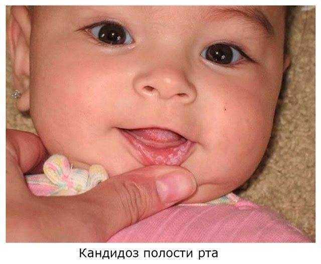 Чем лечить молочницу на языке у грудничка?