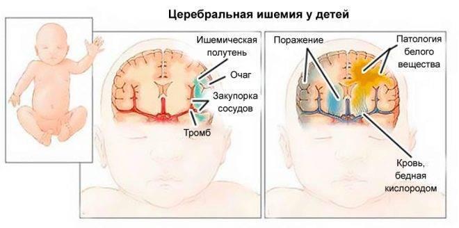 Последствия ишемии головного мозга у новорожденных | медик03