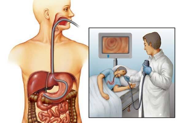 Гастроскопия желудка без глотания зонда: как подготовиться, противопоказания и отзывы