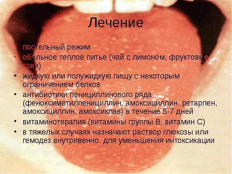 Герпетическая (герпесная) ангина у детей: лечение, фото