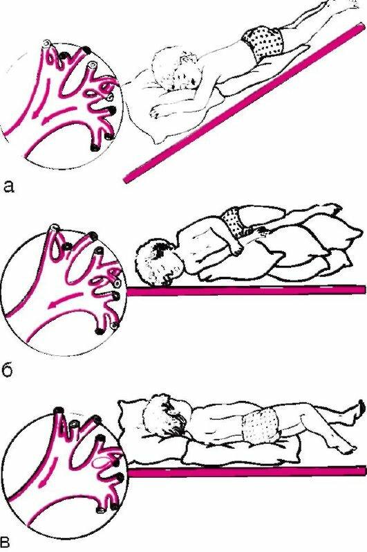 Дренажный массаж для детей при кашле для отхождения мокроты - от боли