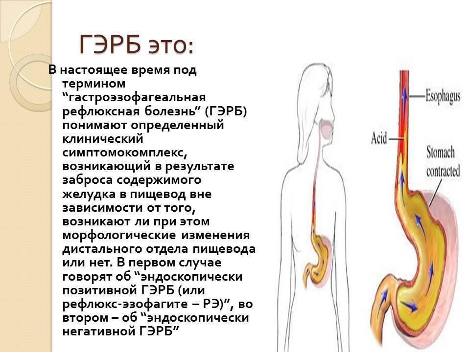 Эзофагит у детей - причины, симптомы и эффективное лечение