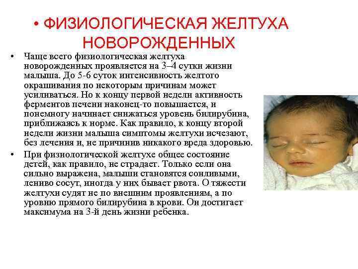 Неонатальная желтуха у новорожденных: симптомы и лечение