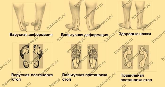 Варусная деформация стопы у детей ? - фото и симптомы, способы лечения, подбор обуви