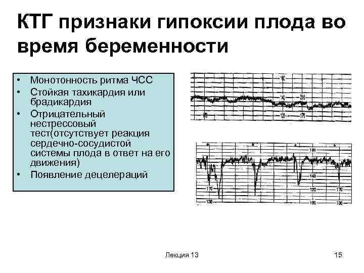 Брадикардия у плода на ранних сроках лечение - cardiologiy