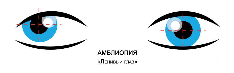 Амблиопия или синдром ленивого глаза: что это такое, причины, симптомы и лечение