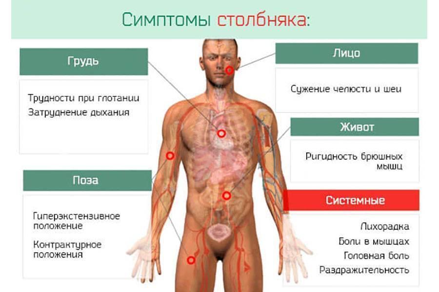 Симптомы столбняка у детей первые признаки. первые симптомы столбняка у детей после пореза, лечение и профилактика заболевания. развитие болезни: кризис